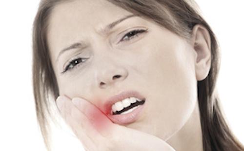 urgence dentaire à lyon : rage de dent