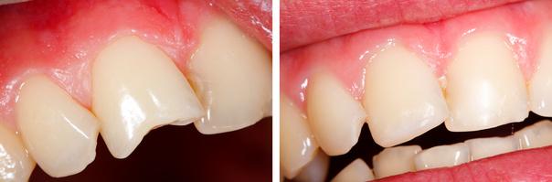 réparer une dent cassée à la clinique du parc à lyon