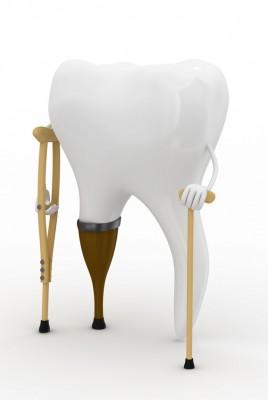des dents mobiles