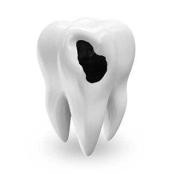 plombage dentaire tombé et réparé à la clinique dentaire du parc de lyon